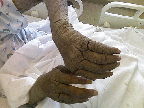 Фото рук человека с норвежской чесоткой