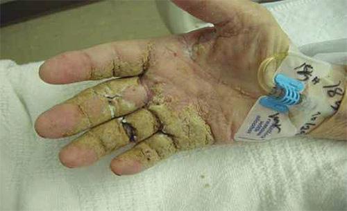 Рука человека с признаками норвежской чесотки