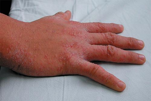 На фото - проявления чесотки на коже руки