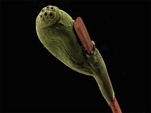 Фотография гниды под электронным микроскопом