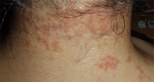 Высыпания на шее, возникшие в результате укусов головных вшей