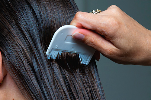 Рассмотрим несколько практических шагов по быстрой и эффективной борьбе со вшами и гнидами