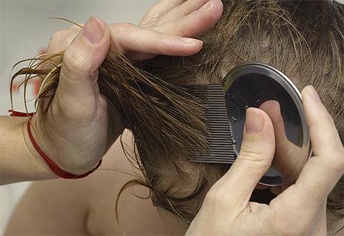 Начинать вычесывать вшей и гнид гребнем необходимо от самых корней волос