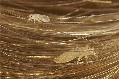 Вши на волосах - наиболее частый образ этих паразитов в сновидениях