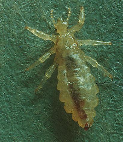 Хитиновые покровы бельевых вшей полупрозрачные, при достаточном увеличении можно рассмотреть внутренности насекомого