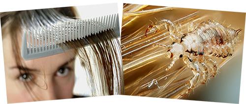 Попробуем разобраться, как следует интерпретировать сны со вшами на волосах