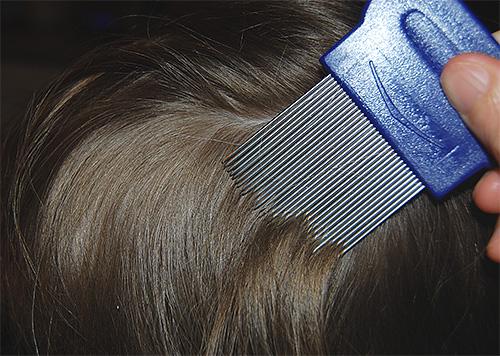 Специальные металлические жесткие гребни позволяют эффективно удалять живых и мертвых вшей и гнид с волос