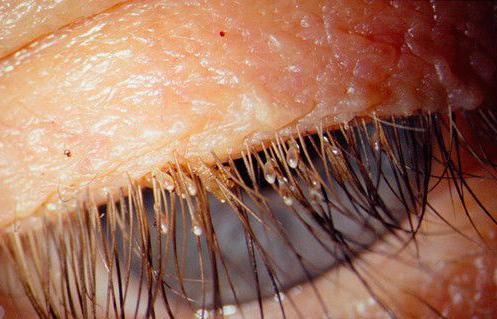 Хорошо видны гниды лобковых вшей на ресницах