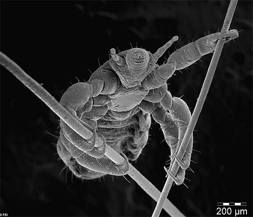 Головная вошь на волосах под микроскопом