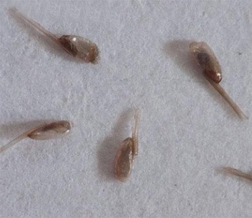 Практически любое средство от вшей и гнид следует комбинировать с вычесыванием паразитов при помощи гребня