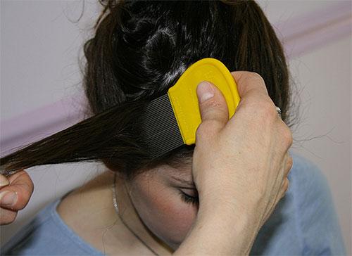 Если вы выбрали механический способ удаления гнид, нужно вычесывать волосы очень тщательно, прядь за прядью