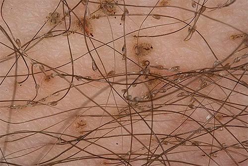 А так выглядят паразиты и их гниды на волосах непосредственно в месте своего обитания