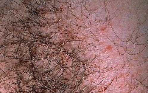 А вот так выглядят укусы лобковых вшей при несильном заражении паразитами
