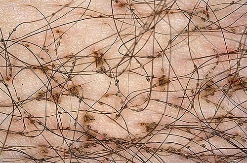 Помимо собственно лобковых вшей можно также разглядеть многочисленные гниды на волосах