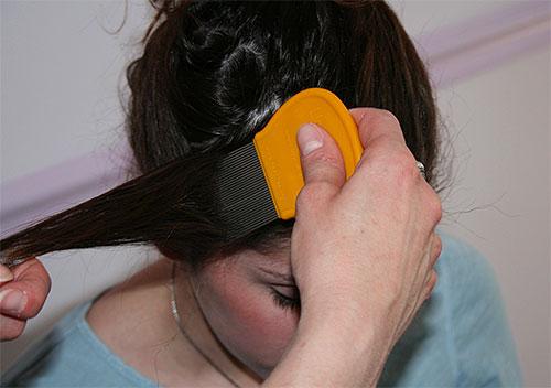 После обработки Медифоксом стоит провести вычесывание волос гребнем от вшей