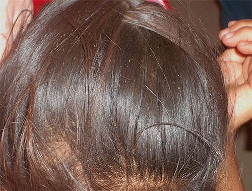 Гниды на волосах напоминают скопление белых точек