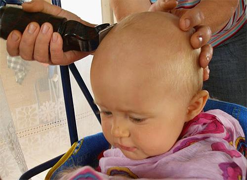 Бритье зараженных вшами участков тела является оптимальным способом избавления от вшей