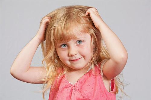 Признаками наличия вшей у ребенка являются постоянное почесывание головы и беспокойное поведение