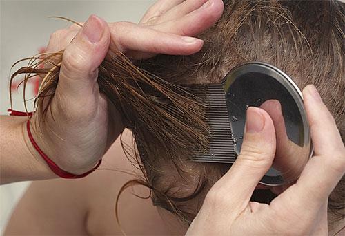 Вычесывание гребнем вшей и гнид - непростая, но достаточно эффективная процедура