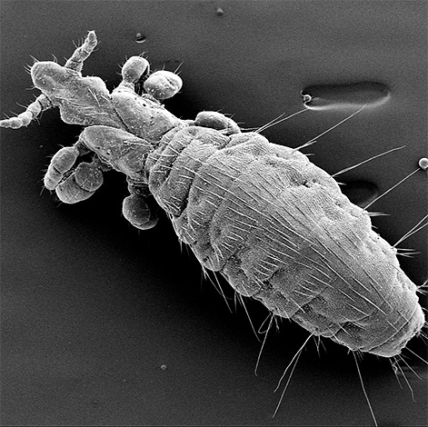 На фото показана собачья вошь под микроскопом