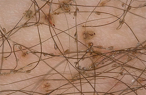 Лобковые вши способны жить лишь в волосяном покрове человека, что упрощает процедуру лечения