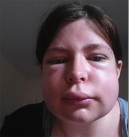 Последствия укуса шершня в лицо