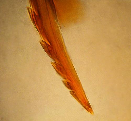 На фото видно, что жало пчелы имеет зазубренную форму