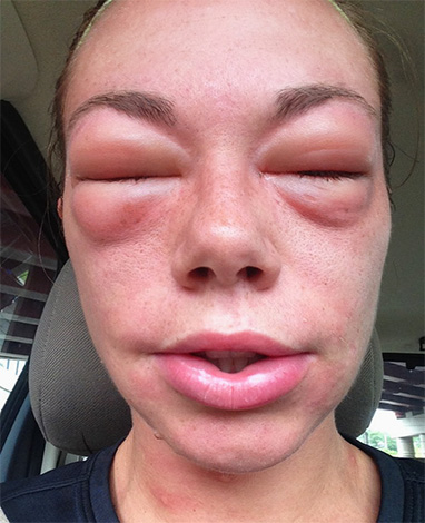 Если после укуса шершня быстро развивается общая аллергическая реакция организма, медлить с первой помощью нельзя...