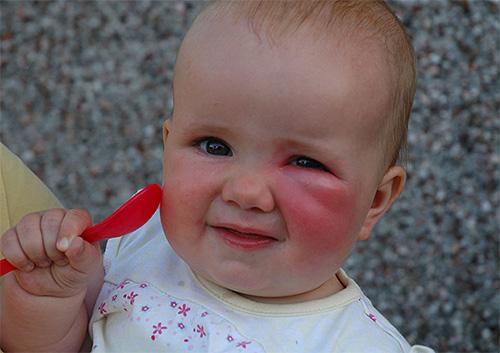 Для обработки места укуса у маленького ребенка можно использовать бальзам Gardex Baby.