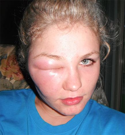 Иногда яд насекомого провоцирует аллергическую реакцию с сильно выраженным отеком мягких тканей.