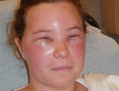 Яды перепончатокрылых насекомых, и ос в том числе, обладают выраженным аллергенным действием.