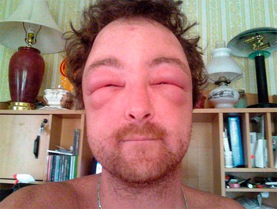 Лечение осложненных аллергических реакций желательно доверить врачам.