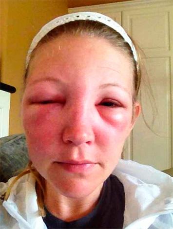 При укусе шершня аллергический отек может захватить не только пораженный участок кожи, но и значительно большую площадь.