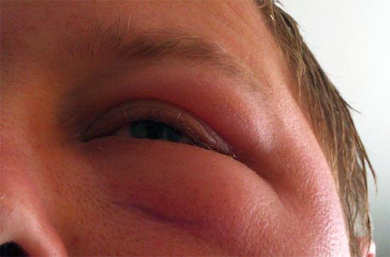 Пример аллергического отека лица после укуса пчелы