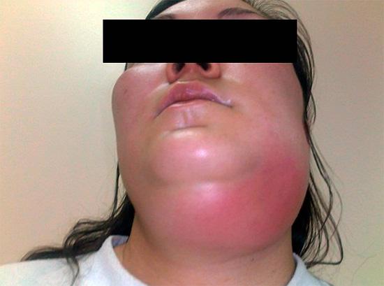 Весьма опасен укус шершня в область горла, так как вследствие отека могут оказаться перекрытыми дыхательные пути.