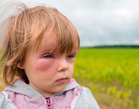 При оказании первой помощи ребенку следует помнить, что многие препараты от аллергии не предназначены для приема в детском возрасте.
