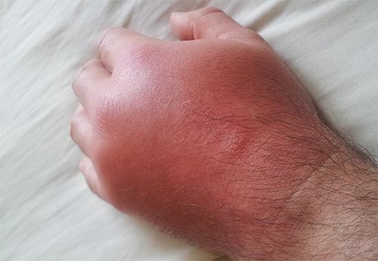 Зачастую укус осы вызывает в пораженном месте не только воспаление и отек, но и сильный зуд.