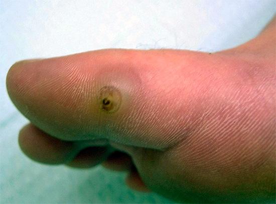 Песчаные блохи способны проникать под кожу, приводя к серьезным и опасным воспалениям.