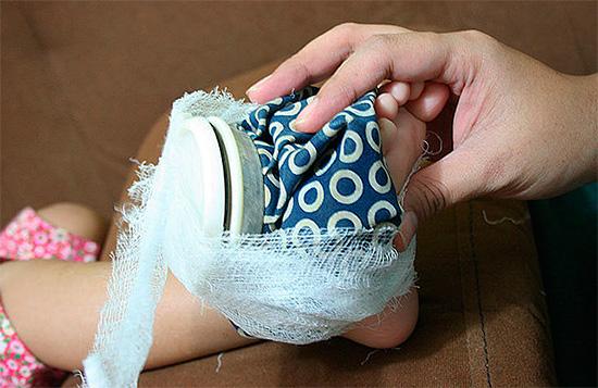 Холодный компресс можно, например, привязать к распухшей ноге бинтом.