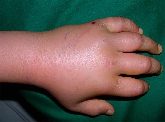При укусах жалящих насекомых рука может так сильно распухнуть, что практически невозможно будет сжать пальцы в кулак.