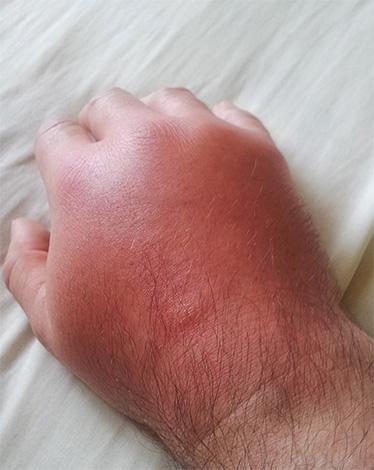 Опухоль на руке после укуса шершня