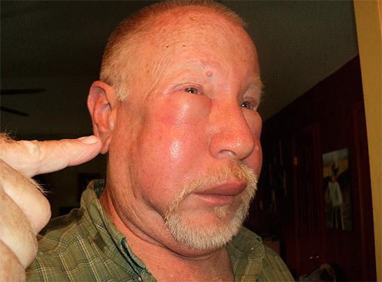 Опухоль на лице после укуса шершня