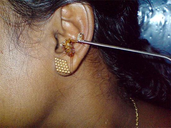 Нередко тараканы заползают людям в уши, и извлечь насекомое оттуда иной раз бывает весьма проблематично.