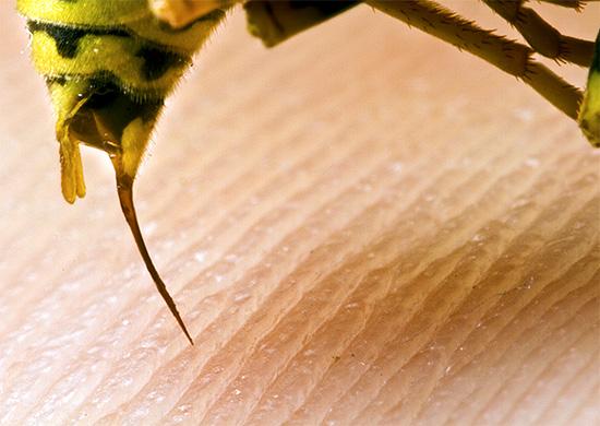 Применять для самостоятельного лечения укусы ос и пчел не только не полезно, но и очень опасно.