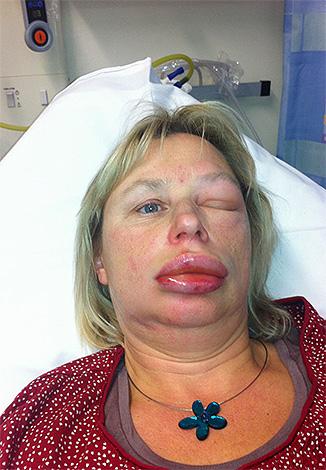 Одним из весьма опасных проявлений аллергии является отек Квинке.