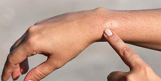 На месте свежего укуса сперва появляется небольшая припухлость, более светлая, чем окружающая кожа.