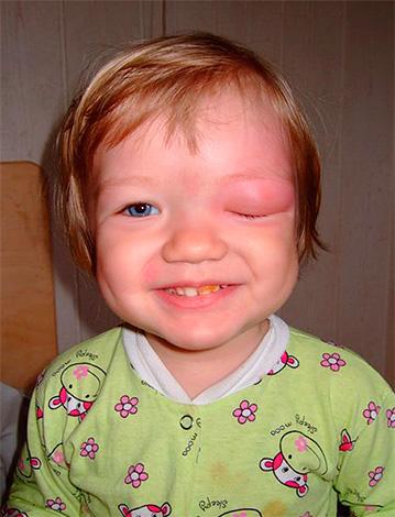 После проведенного лечения полезно бывает отвлечь ребенка от боли и зуда какой-нибудь увлекательной игрой.