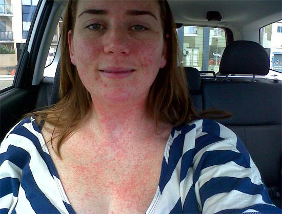 Попадание инсектицидов на кожу и в дыхательные пути может иногда приводить к сильной аллергической реакции.
