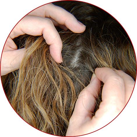 Сегодня от вшей и гнид в волосах можно избавиться достаточно быстро, буквально за 1 день - дальше об этом и поговорим...