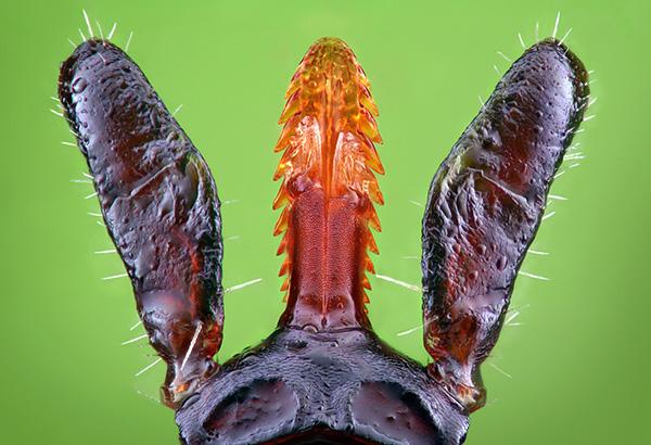 Так выглядит гипостом клеща под микроскопом.